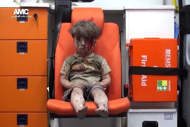 オムラン・ダクニシュ君(5)。17日にアレッポを襲った空爆で自宅が破壊され、がれきの中から救出された。兄のアリ君(10)も救出されたが、重傷のため20日に死亡した。(写真:アレッポ・メディア・センター=AMC)
