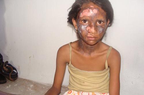 インド東部オリッサ州で2008年に発生した反キリスト教の暴動で顔を焼かれた少女(写真:全インド・キリスト教協議会=AICC)<br />